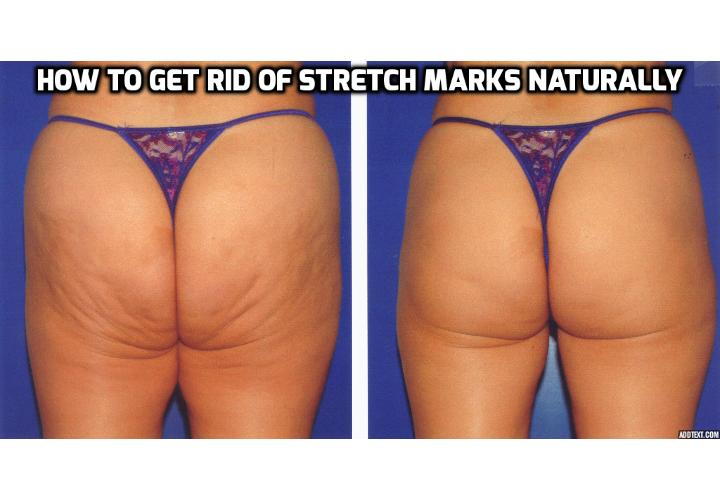 7 Top Foods that Really Eliminate Stretch Marks Remarkably - Toxins in your body contribute to poor skin. Here is how you can eliminate stretch marks for good to get glowing, blemish-free skin again.