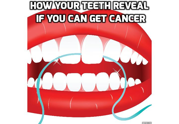 What Is the Link Between Teeth Health and Cancer Risk? According to Swedish researchers, there is a strong link between teeth health and cancer risk!  Read on to find out more.
