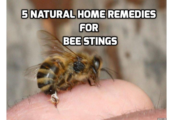 Here are 5 Effective Home Remedies for Bee Stings -  If you are thinking of what can you do after being stung by a bee, read on here to find out about the 5 effective home remedies for bee stings you can use to help ease the discomfort.