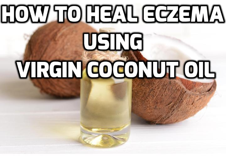 Coconut Oil as an Effective Eczema Alternative Treatment - Are you looking for an effective eczema alternative treatment without the side effects or health risks that usually comes with traditional OTC and prescription medication? If you have been struggling with frustration and disappointment on dealing with temporary remedies, consider the natural alternatives. Read on to find out more.