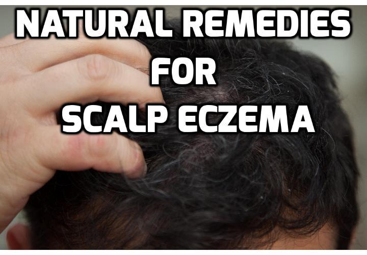 Natural treatment for scalp eczema